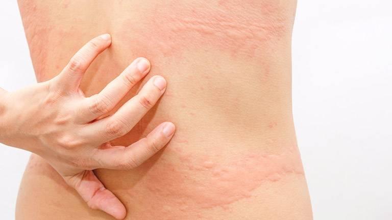 Đa số trường hợp mề đay chỉ gây tổn thương ngoài da