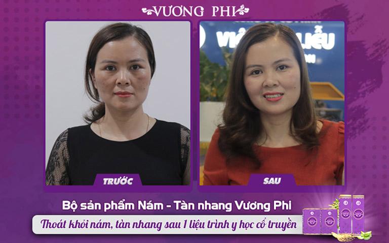 Hình ảnh chị Mơ trước và sau điều trị nám với bộ sản phẩm Vương Phi