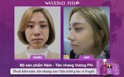 Kết quả trước và sau khi sử dụng Vương Phi loại bỏ tàn nhang