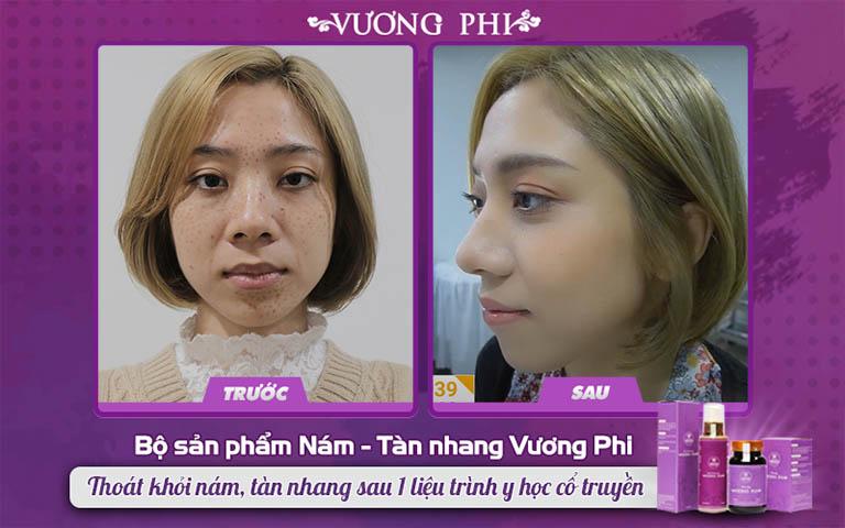 Kết quả trước và sau khi sử dụng Vương Phi loại bỏ tàn nhang của chị Hoài An