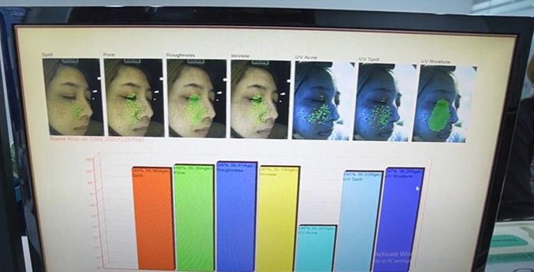 Kết quả soi da tại Trung tâm Da liễu Đông y của chị An