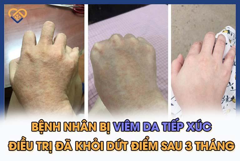 Tiến triển làn da qua 3,5 tháng điều trị với bài thuốc An Bì Thang