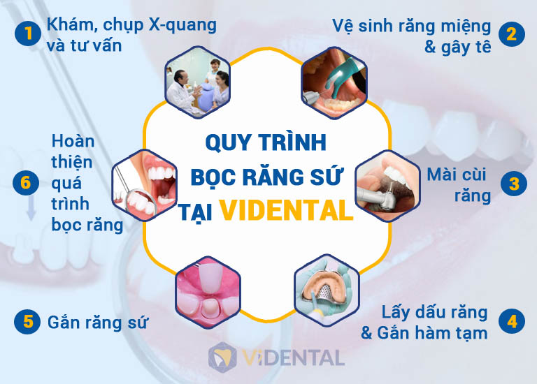 Quy trình bọc răng sứ tại Vidental