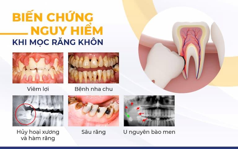 Biến chứng khi mọc răng khôn