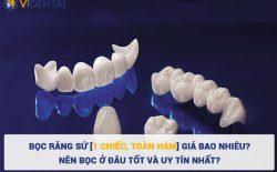 Bọc răng sứ tại Vidental