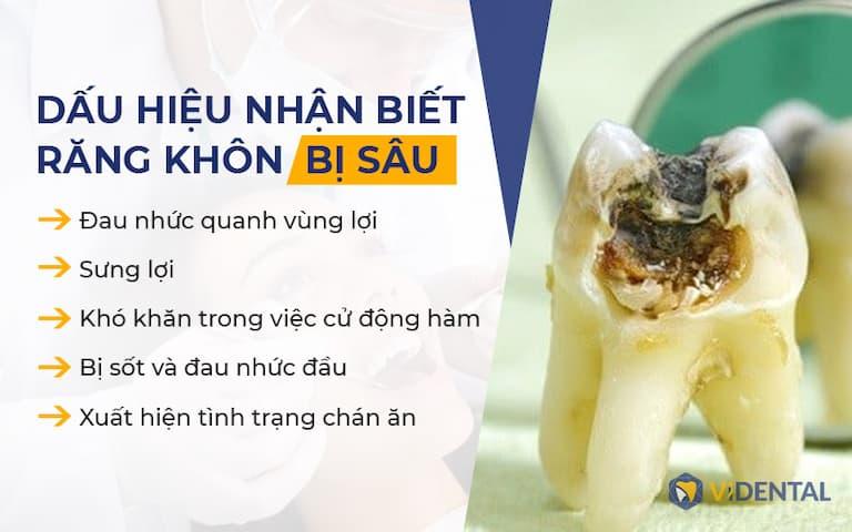 Dấu hiệu khi mọc răng khôn