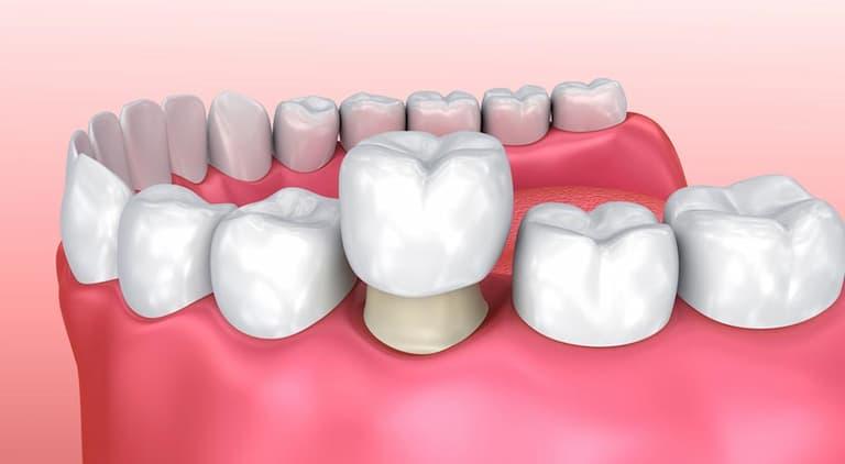 Bọc răng sứ dàn được nhiều người ưa chuộng