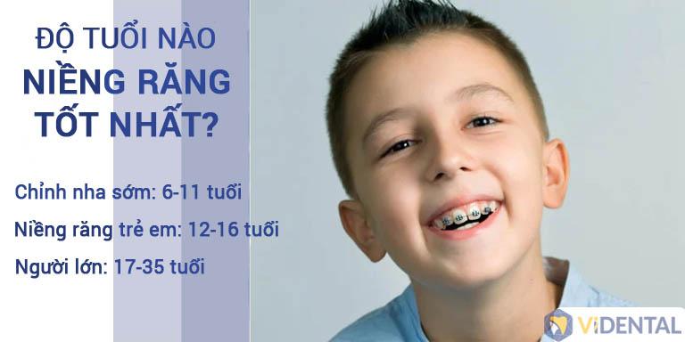 Các bậc phụ huynh nên tìm hiểu sớm độ tuổi có thể niềng răng cho bé