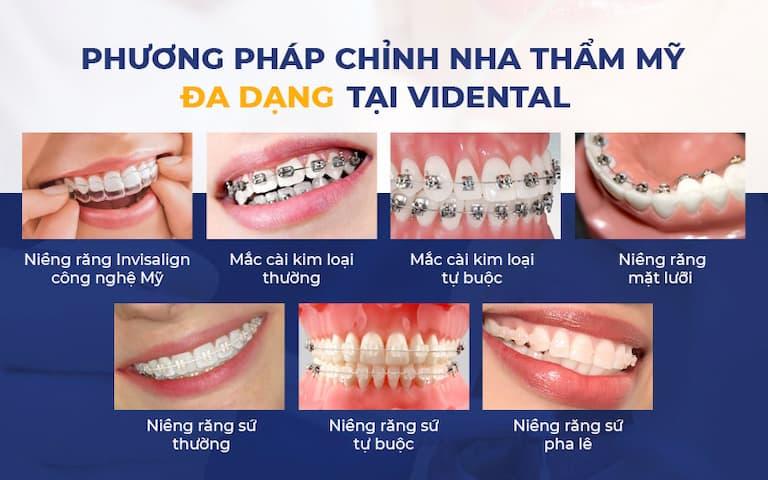 Vidental có đa dạng các phương pháp niềng răng