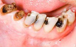 Sâu răng là hiện tượng răng xuất hiện lỗ nhỏ hoặc lỗ hổng.