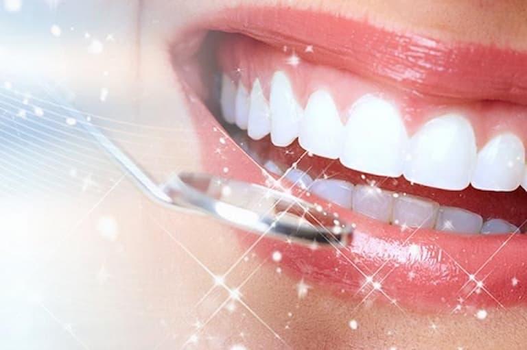Tuổi thọ khi bọc răng sứ là thắc mắc của rất nhiều người