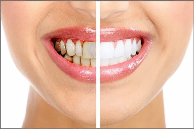 Bọc răng sứ mang lại nhiều ưu điểm vượt trội