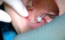 Răng khôn là gì? Biến chứng thường gặp khi mọc răng khôn?
